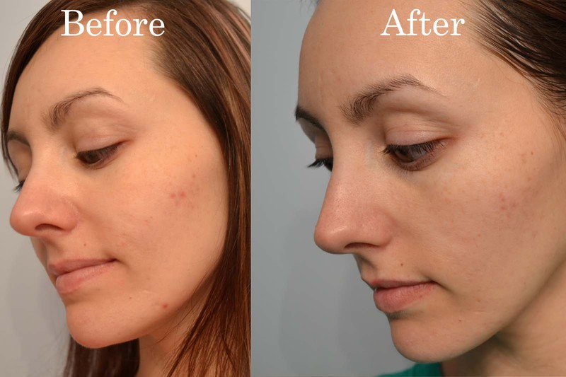 Rosacea Treatment Steroid Cream Cheese